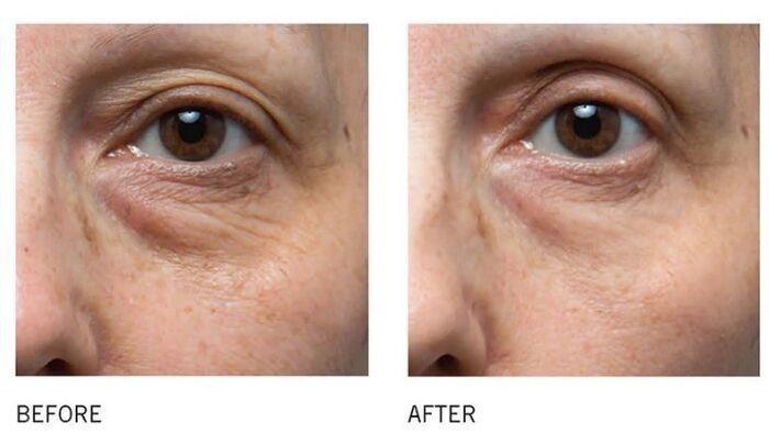IS CLINICAL 4 Steps to GREAT SKIN